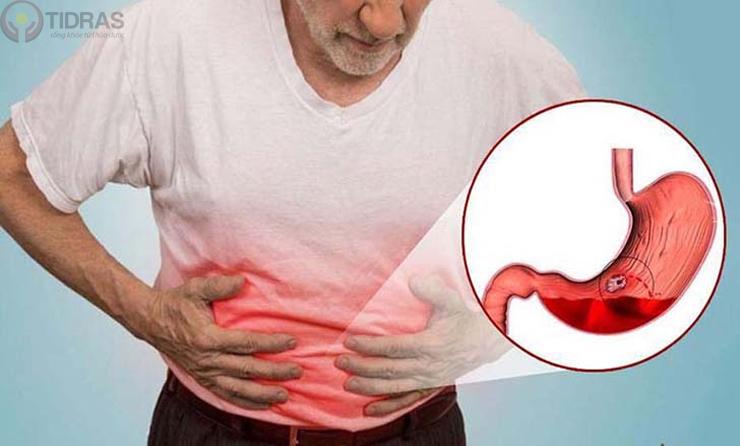Bệnh viêm dạ dày