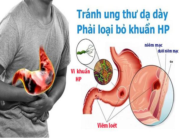 Các bệnh dạ dày thường gặp