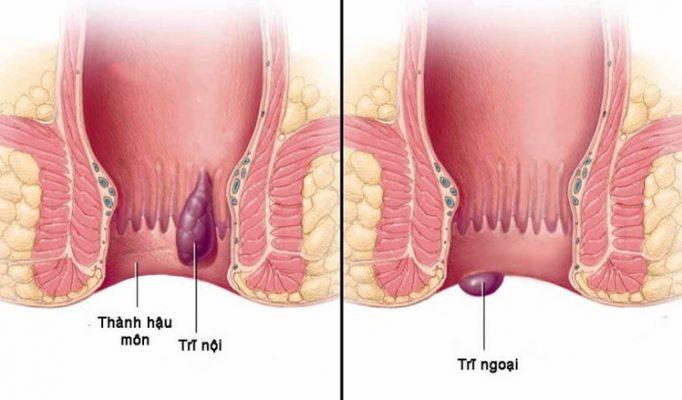 Thuốc chữa bệnh trĩ nội, trĩ ngoại hiệu quả